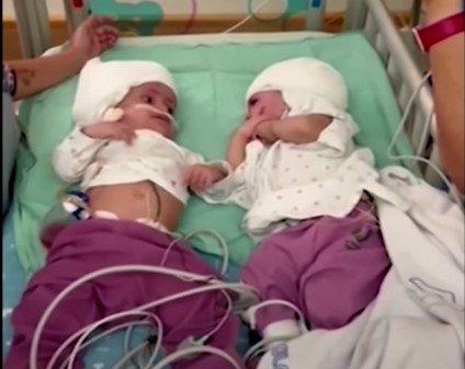 prvi put se videle posle operacije razdvajanja
