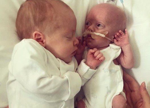 prica o blizancima